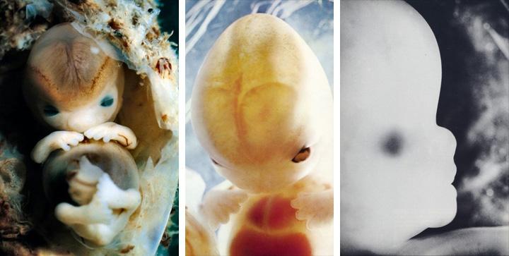 фотографии эмбриона на 9 неделе беременности