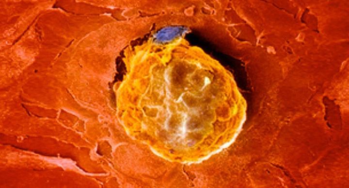 прикрепление яйцеклетки к стенки матки