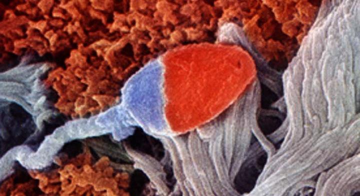 сперматозоид в маточной трубе